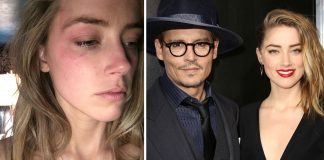 Amber Heard gefur skilnaðargreiðslurnar frá Johnny Depp til góðgerðarmála